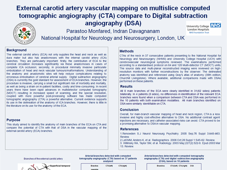 329_Parastoo_Monfared_External carotid artery vascular mapping on multislice computed tomographic angiography (CTA) compare to Digital subtraction angiography (DSA)